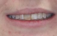 Before - Carnaby Street Dental