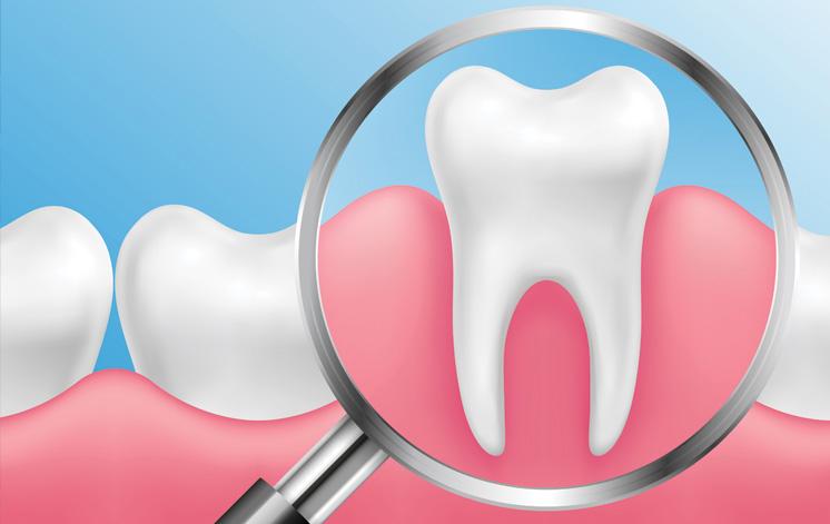 Treatment - Carnaby Street Dental